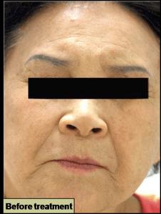GRF治療前 肌の若返り シワたるみの改善