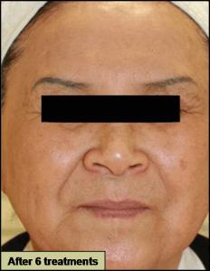 GRF治療後 肌の質感の改善から、シワたるみが改善されている驚くべき効果です。