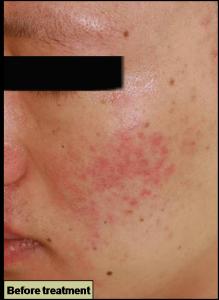 GRF治療前 赤みの治療 赤ら顔の治療