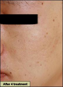 GRF治療後 赤ら顔・赤みの治療