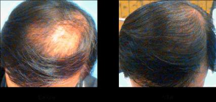 HARG療法 最新発毛育毛毛髪再生治療 症例写真05