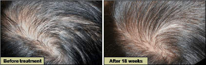 HARG療法 育毛発毛毛髪再生治療 症例写真01
