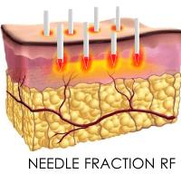 intracell scarlet等のニードルフラクショナルRF機器