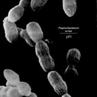 アクネ菌 ニキビ菌といわれるものです。プロピニバクテリウムアクネス