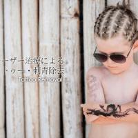 レーザー治療による タトゥー刺青除去