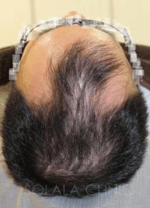 薄毛の治療後6週間