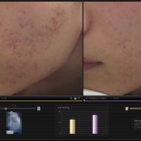 ニキビ跡治療症例写真 フラクショナルレーザー照射方法の調整
