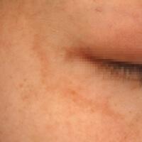 PRE 肝斑治療