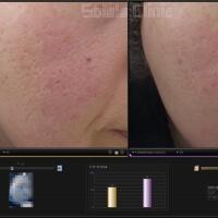 ニキビ跡治療の症例写真 凹凸だけでなく肌質,赤みの改善も