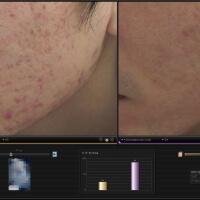 ニキビ跡治療の症例写真 ニキビの抑制とニキビ跡の治療